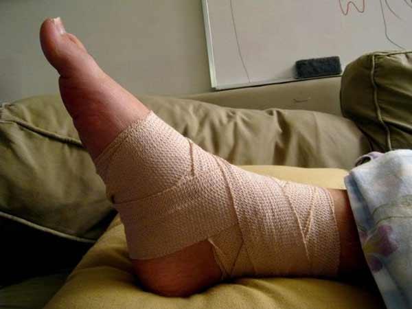 Chấn thương cổ chân là chấn thương kinh hoàng đối với những người chơi bóng đá